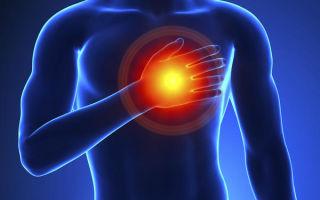 Симптомы и особенности инфаркта миокарда