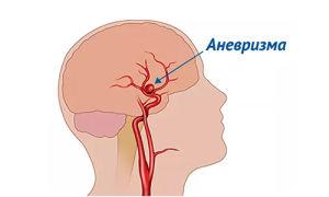 Нарушение кровообращения в сонных артериях