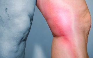 Как вылечить воспаление вен ног?