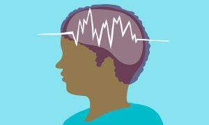 Малый эпилептический припадок