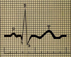 Что такое синусовая аритмия сердца?