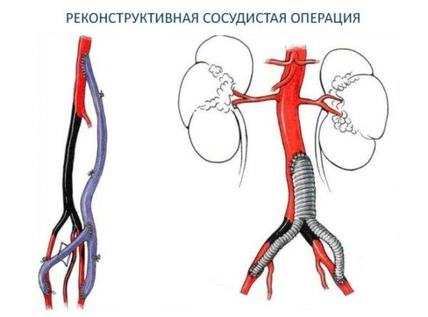 Операция при флебите