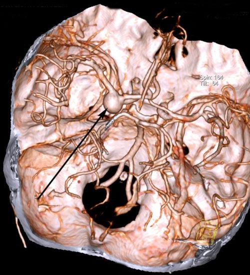 Мешотчатая аневризма развилки левой внутренней сонной артерии при КТ-ангиографии