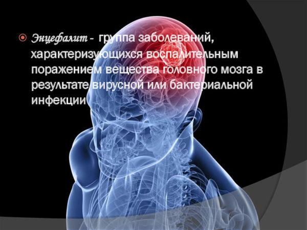 Энцефалит головного мозга