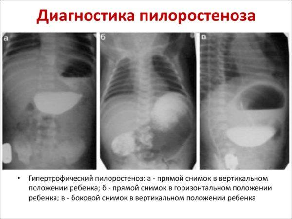 Диагностика пилоростеноза