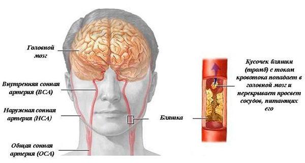Окклюзия сонной артерии