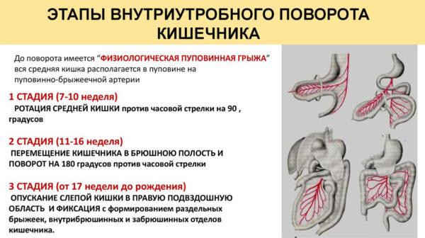 Этапы внутриутробного поворота кишечника