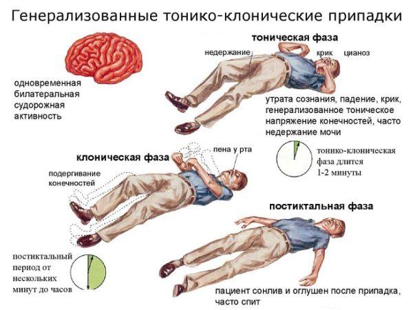 Эпилептический припадок