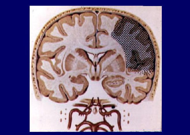 Тромбоз средней мозговой артерии